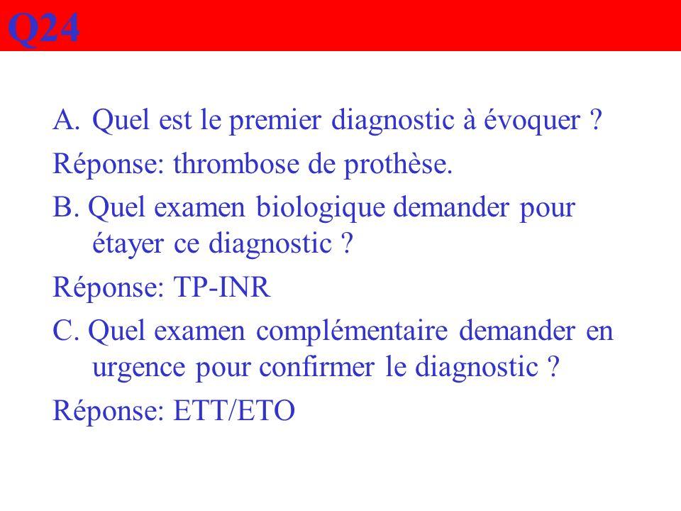 Q24 Quel est le premier diagnostic à évoquer