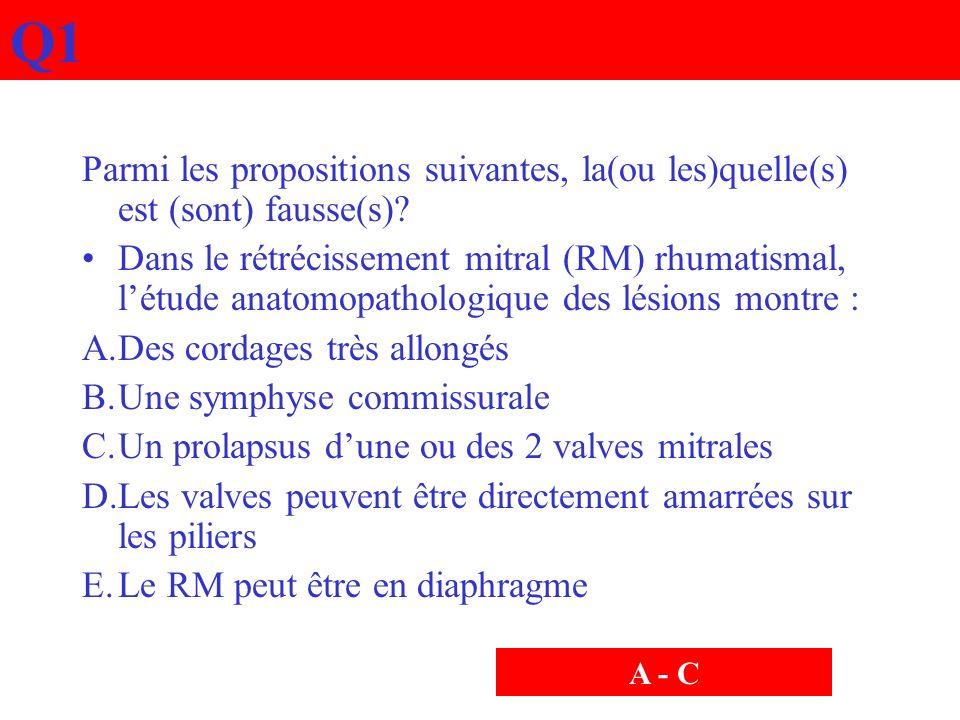 Q1 Parmi les propositions suivantes, la(ou les)quelle(s) est (sont) fausse(s)