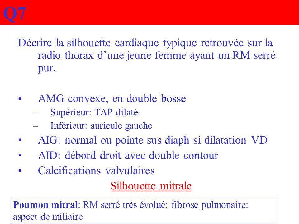 Q7 Décrire la silhouette cardiaque typique retrouvée sur la radio thorax d'une jeune femme ayant un RM serré pur.