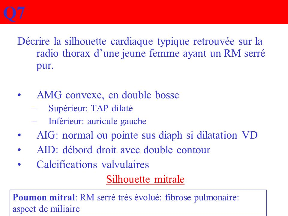 Q7Décrire la silhouette cardiaque typique retrouvée sur la radio thorax d'une jeune femme ayant un RM serré pur.