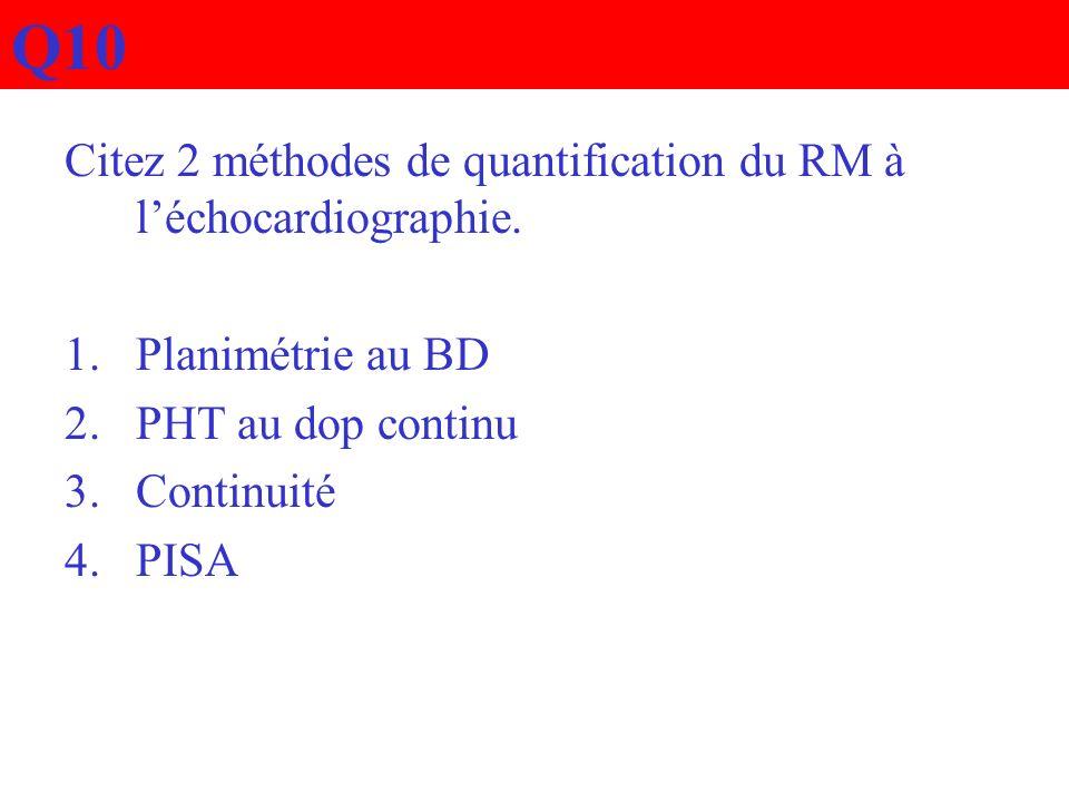 Q10 Citez 2 méthodes de quantification du RM à l'échocardiographie.