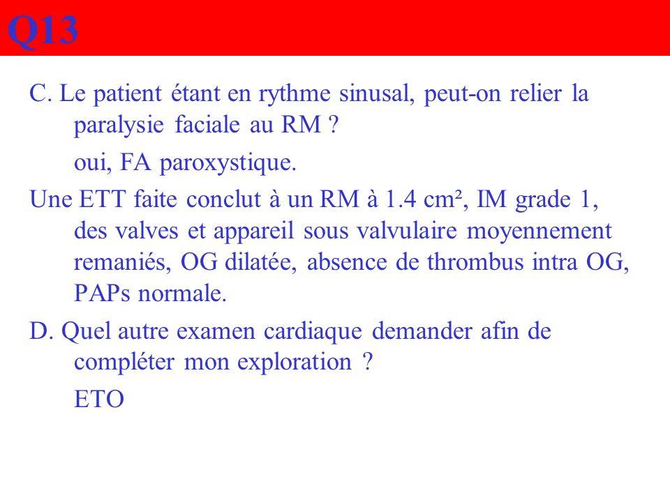 Q13 C. Le patient étant en rythme sinusal, peut-on relier la paralysie faciale au RM oui, FA paroxystique.
