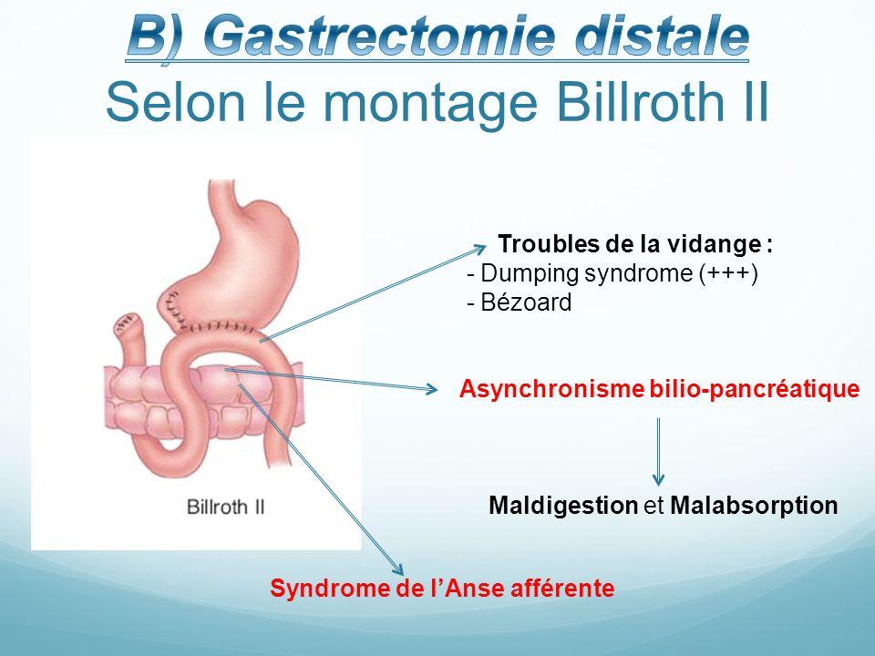 Excelente Billroth Ii Anatomía Modelo - Anatomía de Las Imágenesdel ...