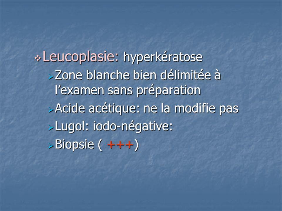 Leucoplasie: hyperkératose