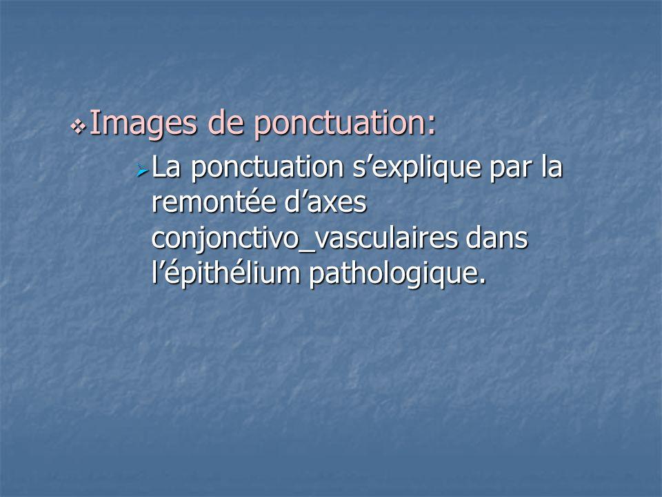 Images de ponctuation:
