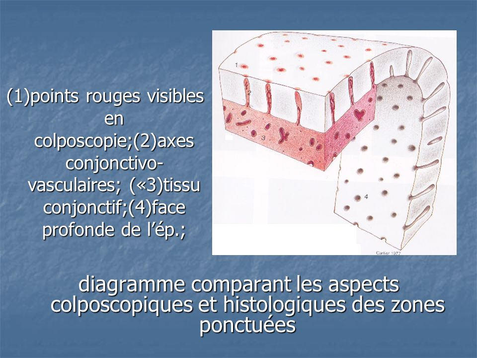 (1)points rouges visibles en colposcopie;(2)axes conjonctivo-vasculaires; («3)tissu conjonctif;(4)face profonde de l'ép.;