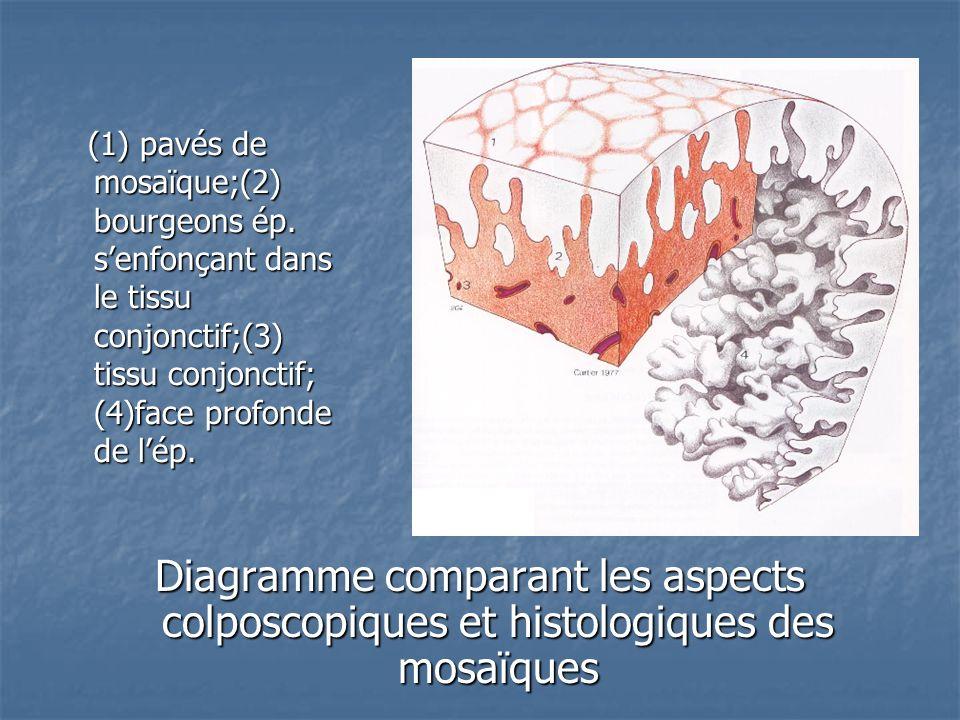 (1) pavés de mosaïque;(2) bourgeons ép