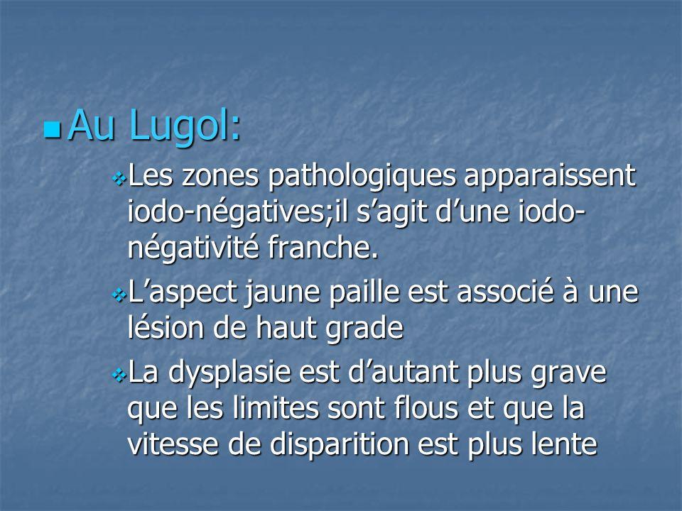 Au Lugol: Les zones pathologiques apparaissent iodo-négatives;il s'agit d'une iodo-négativité franche.