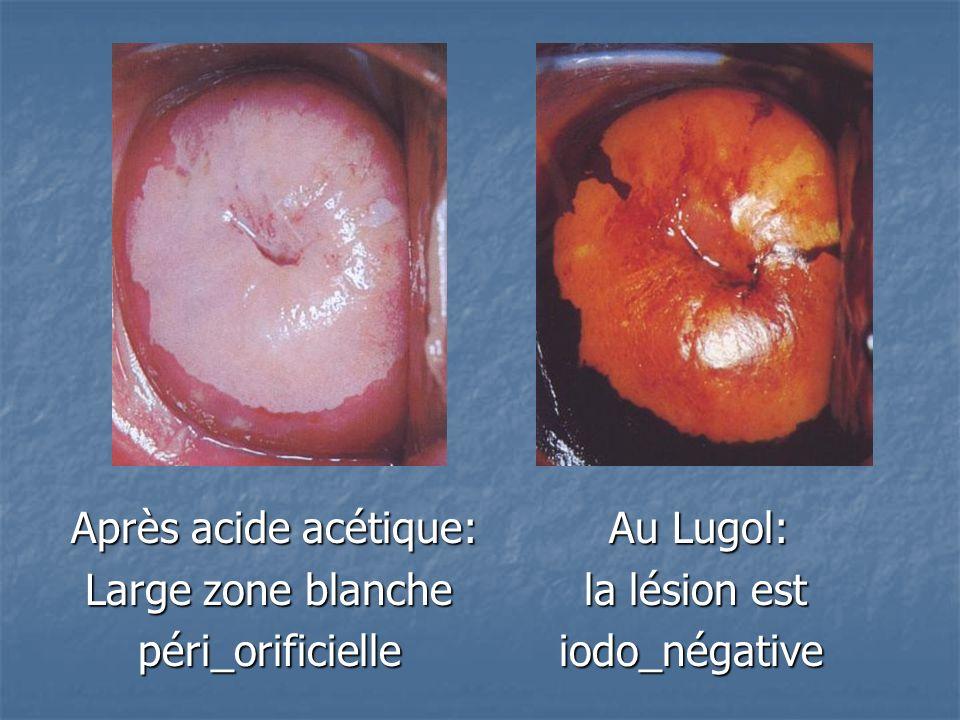 Après acide acétique: Au Lugol: