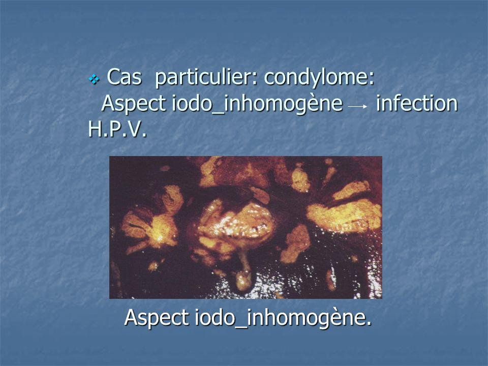 Cas particulier: condylome: Aspect iodo_inhomogène infection H.P.V.