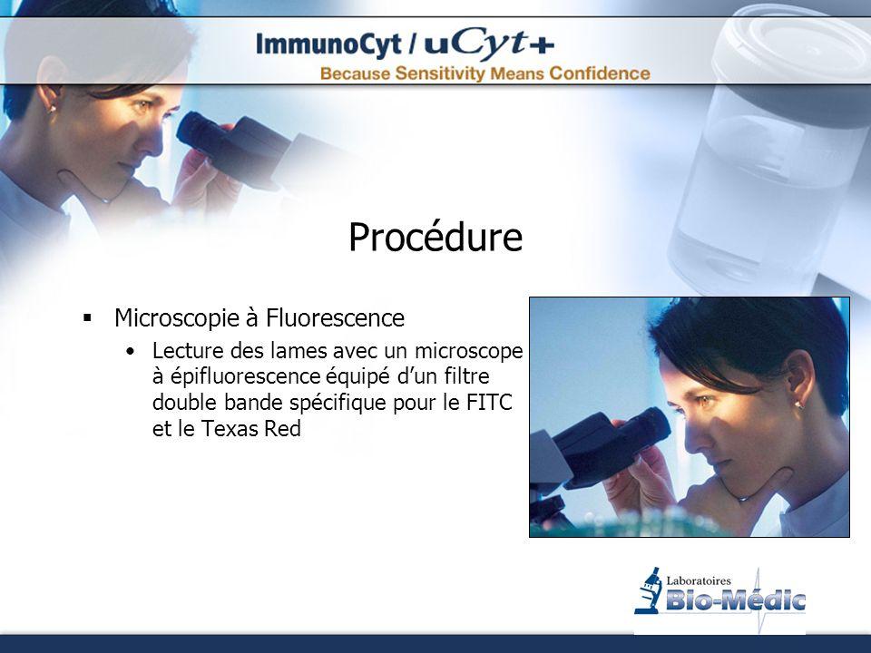 Procédure Microscopie à Fluorescence