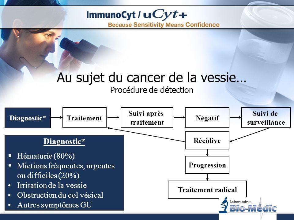 Au sujet du cancer de la vessie… Procédure de détection