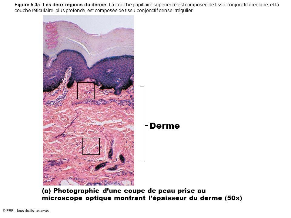 Figure 5. 3a Les deux régions du derme