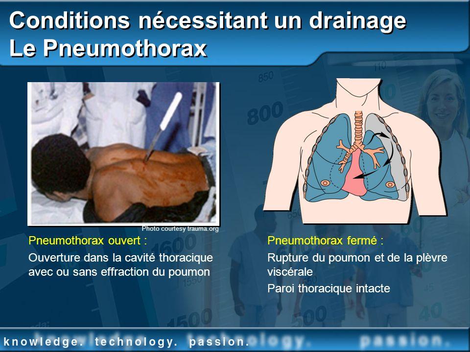 Conditions nécessitant un drainage Le Pneumothorax