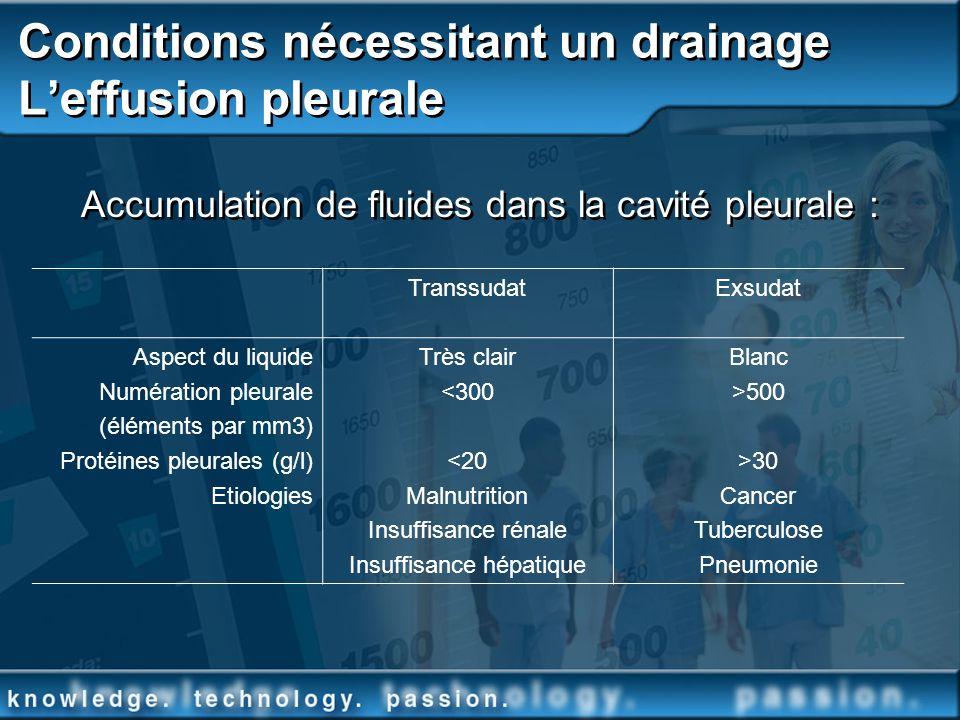 Conditions nécessitant un drainage L'effusion pleurale