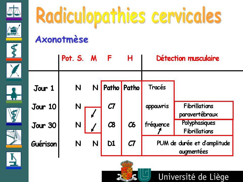 radiculopathie c6