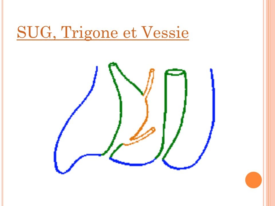 SUG, Trigone et Vessie