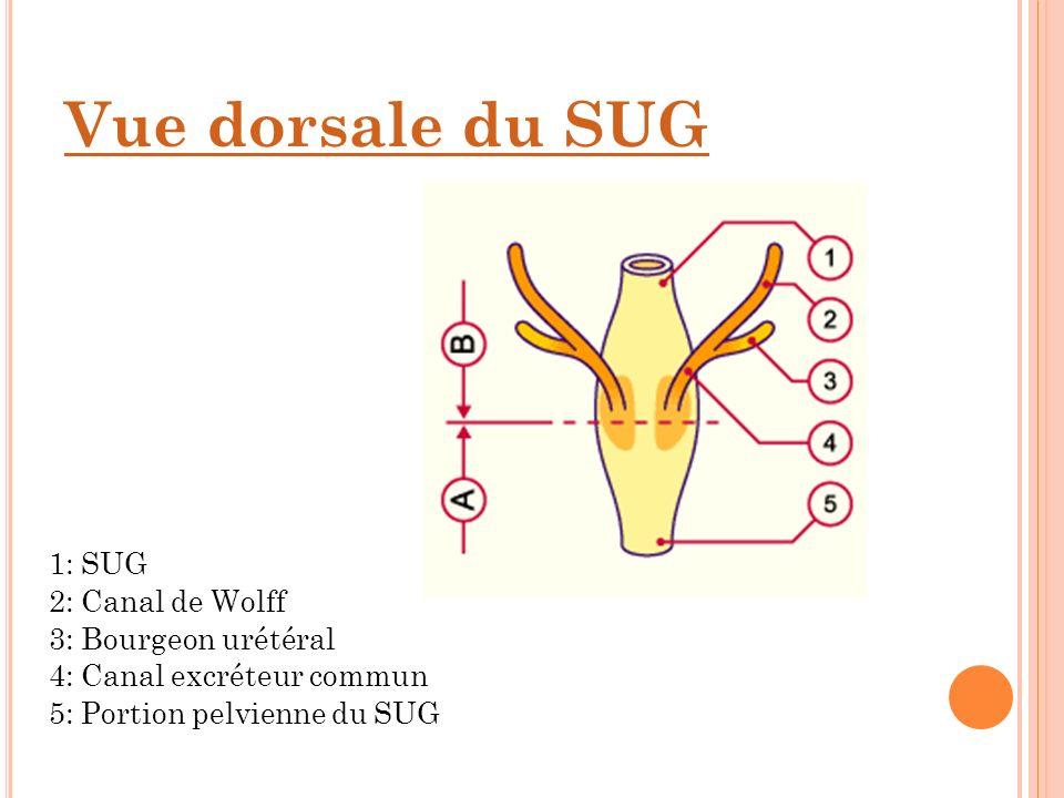 Vue dorsale du SUG 1: SUG 2: Canal de Wolff 3: Bourgeon urétéral