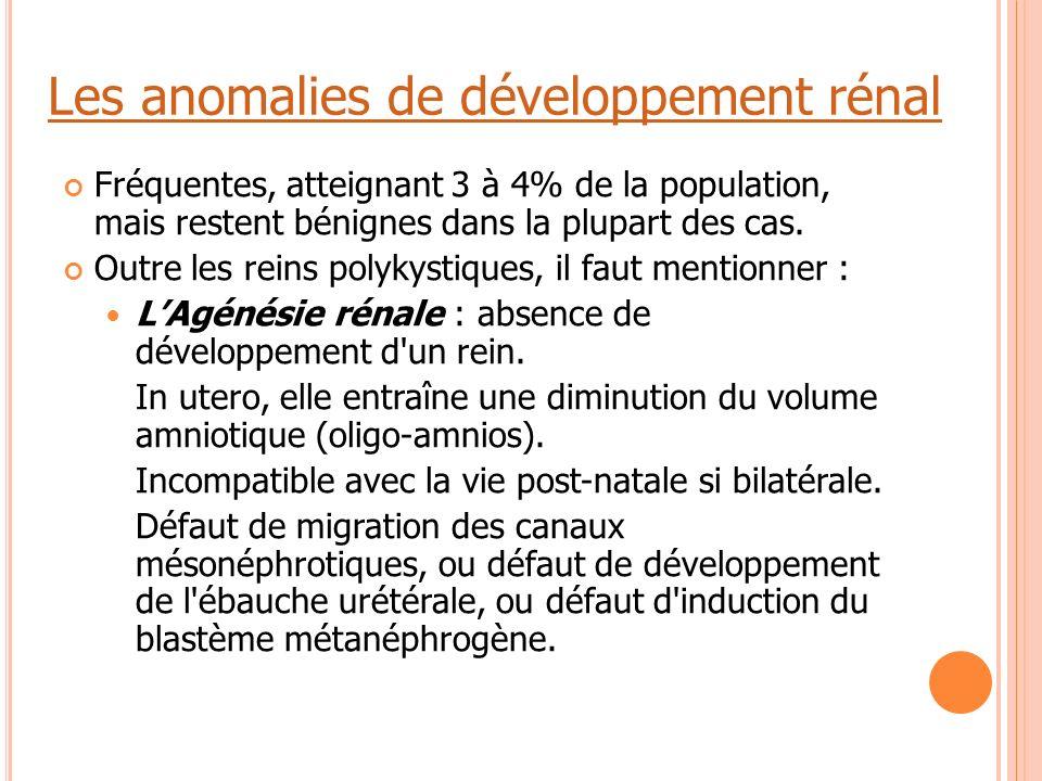 Les anomalies de développement rénal