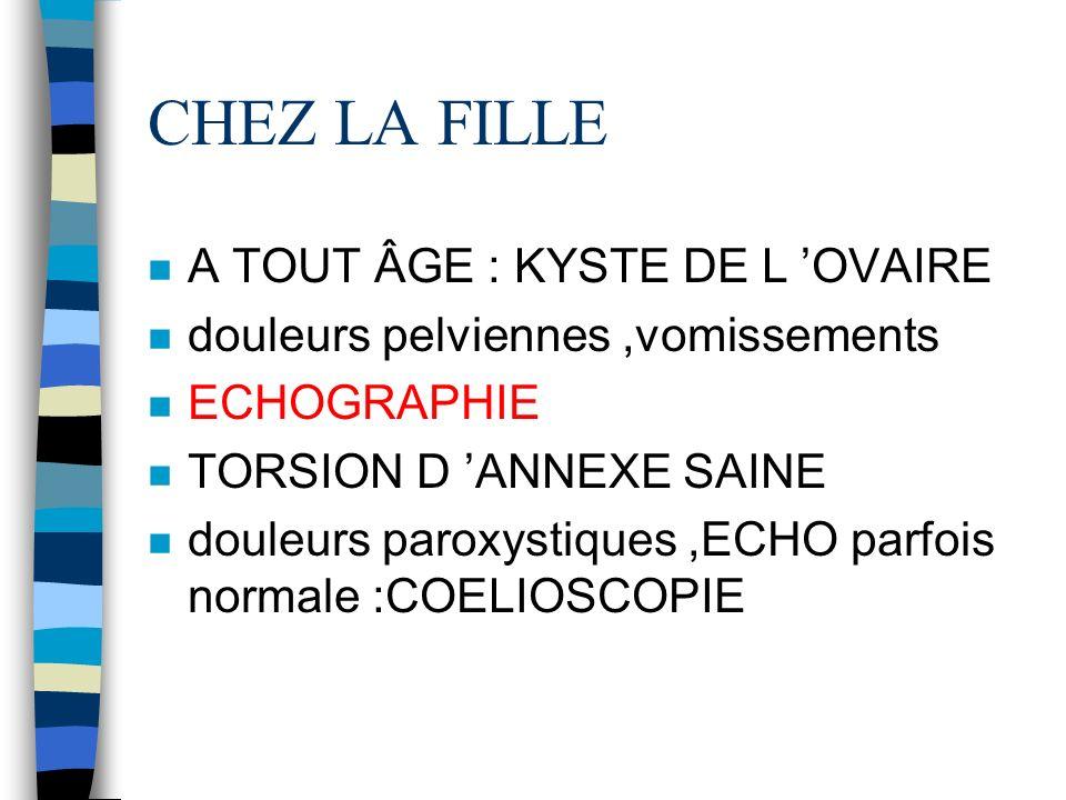 CHEZ LA FILLE A TOUT ÂGE : KYSTE DE L 'OVAIRE