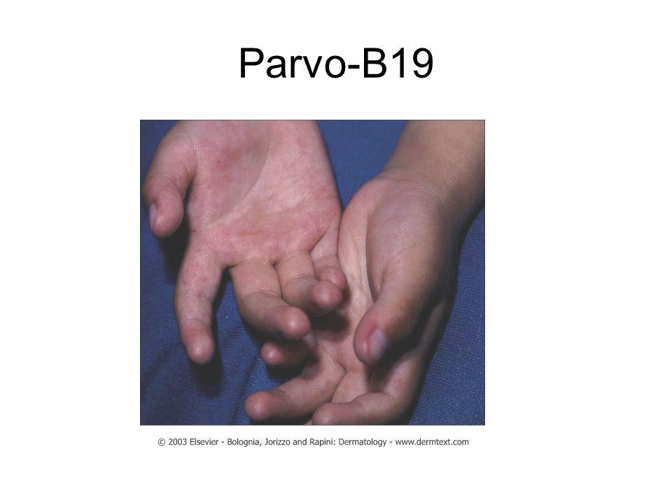 Menschliche parvo b19 Erwachsene