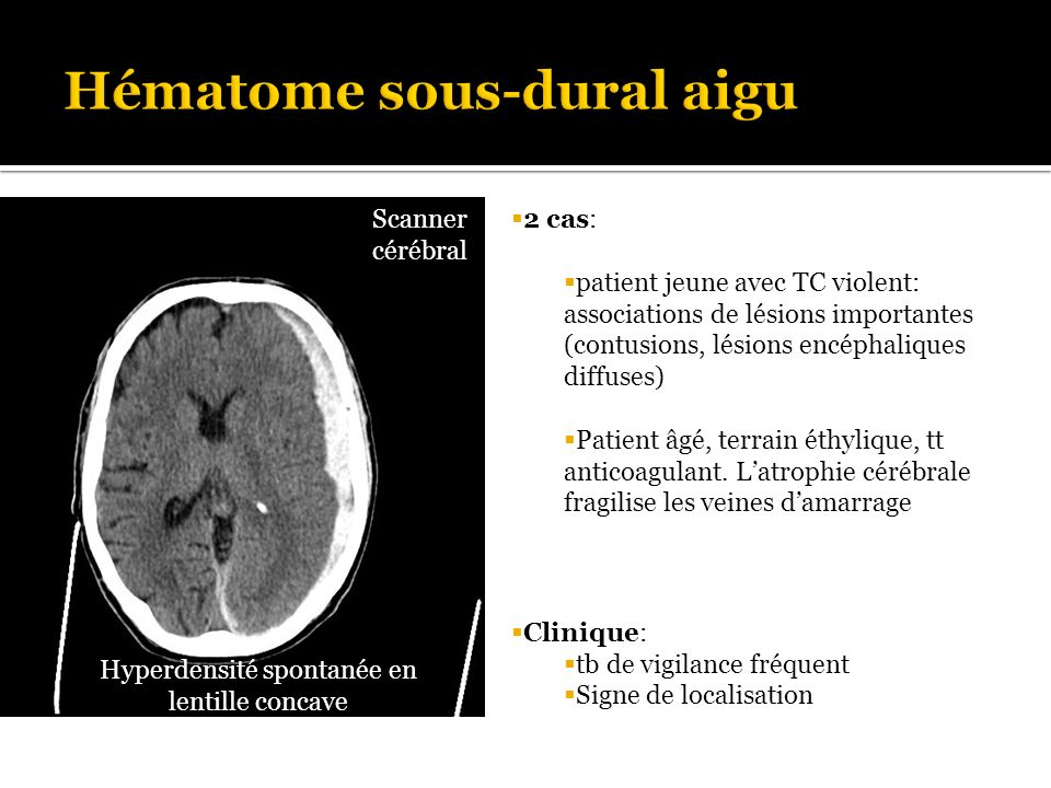 Les traumatismes cr niens ppt video online t l charger - Hematome jambe suite coup ...