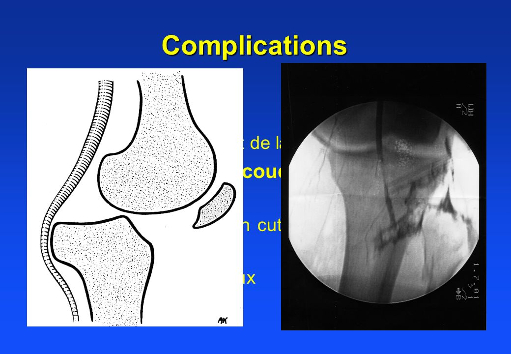 Complications Nerveuse Vasculaire (genou, coude)