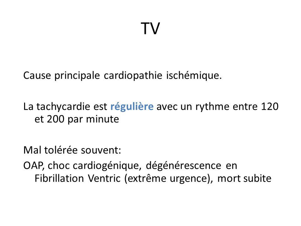TV Cause principale cardiopathie ischémique.