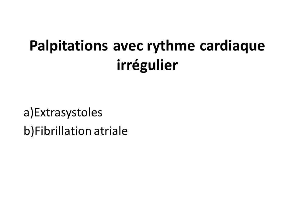 Palpitations avec rythme cardiaque irrégulier
