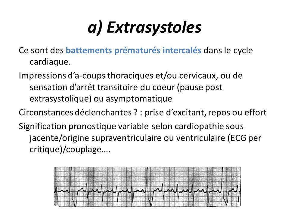 a) Extrasystoles