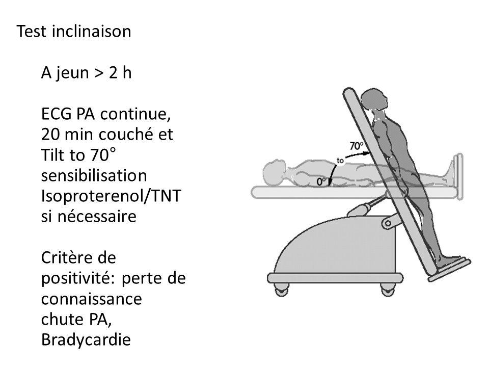 Test inclinaison A jeun > 2 h. ECG PA continue, 20 min couché et. Tilt to 70° sensibilisation. Isoproterenol/TNT si nécessaire.