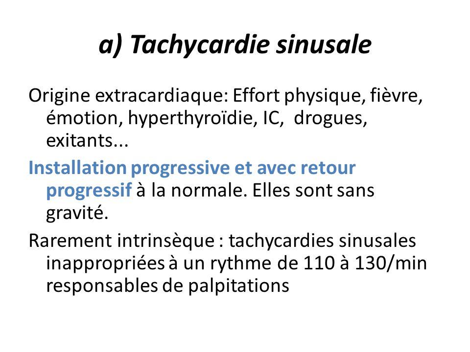a) Tachycardie sinusale