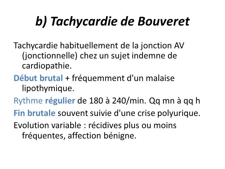 b) Tachycardie de Bouveret