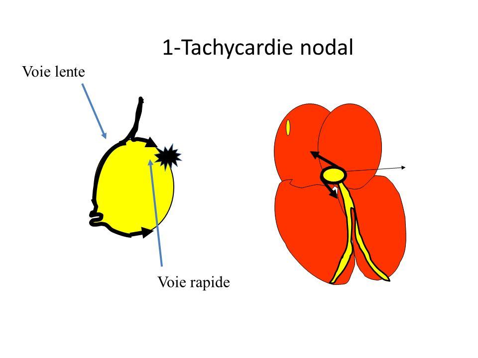 1-Tachycardie nodal Voie lente Voie rapide