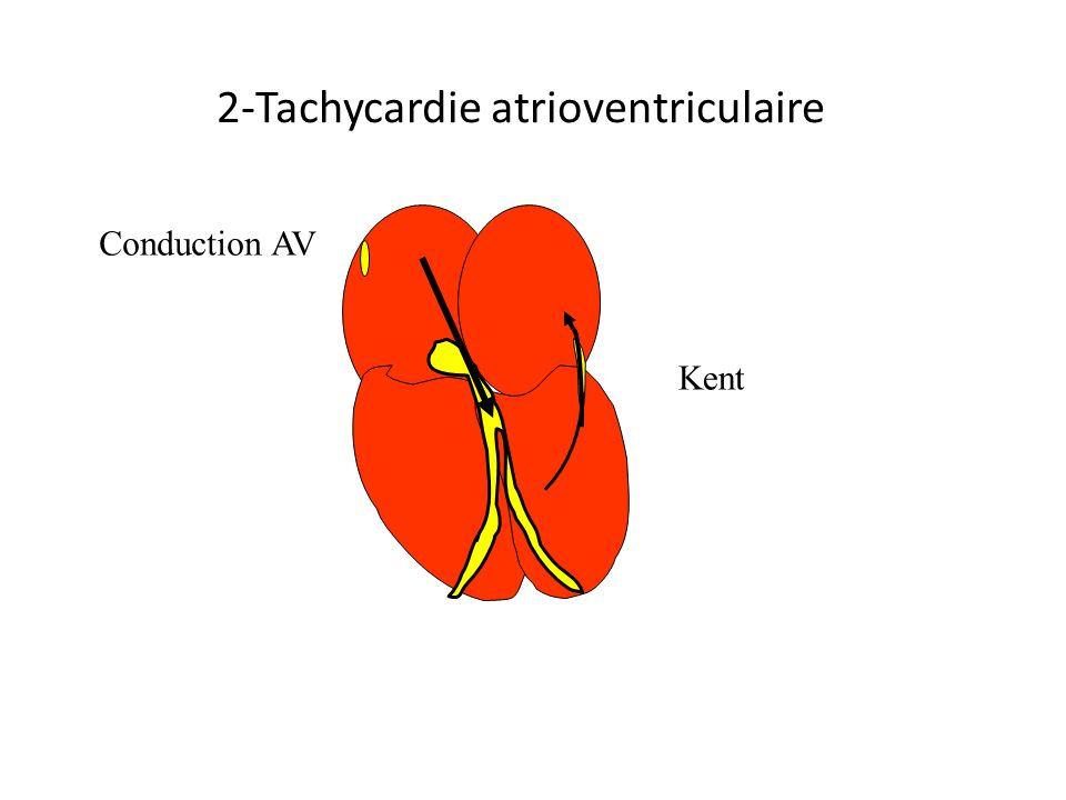 2-Tachycardie atrioventriculaire