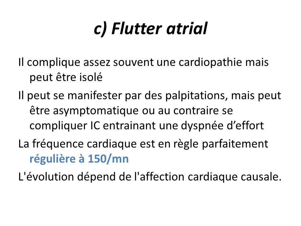 c) Flutter atrial