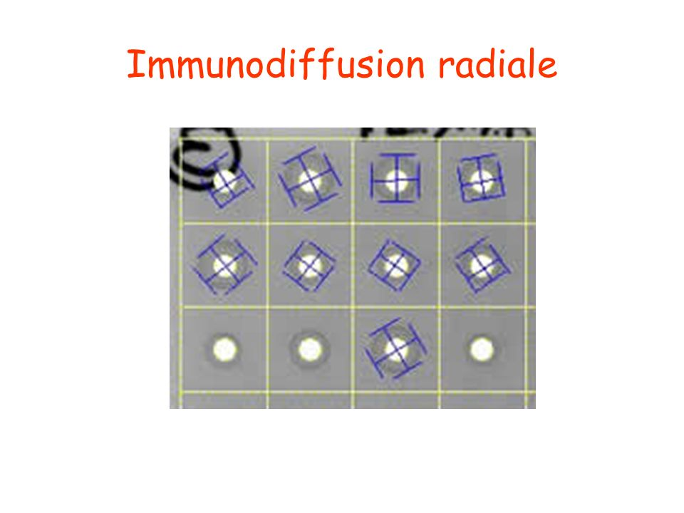 Immunodiffusion radiale