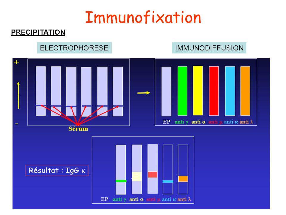 Immunofixation PRECIPITATION ELECTROPHORESE IMMUNODIFFUSION