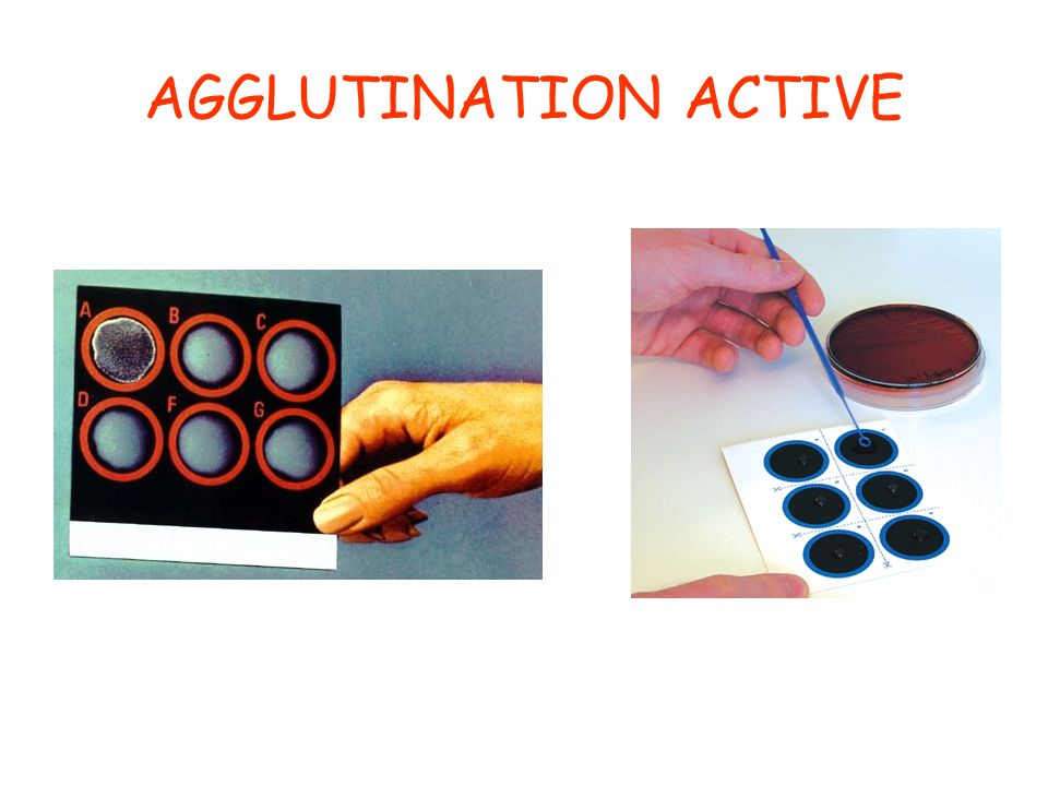 AGGLUTINATION ACTIVE