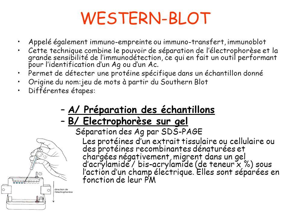 WESTERN-BLOT A/ Préparation des échantillons B/ Electrophorèse sur gel