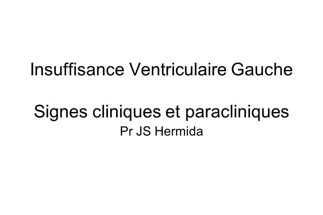 Insuffisance Ventriculaire Gauche Signes cliniques et paracliniques