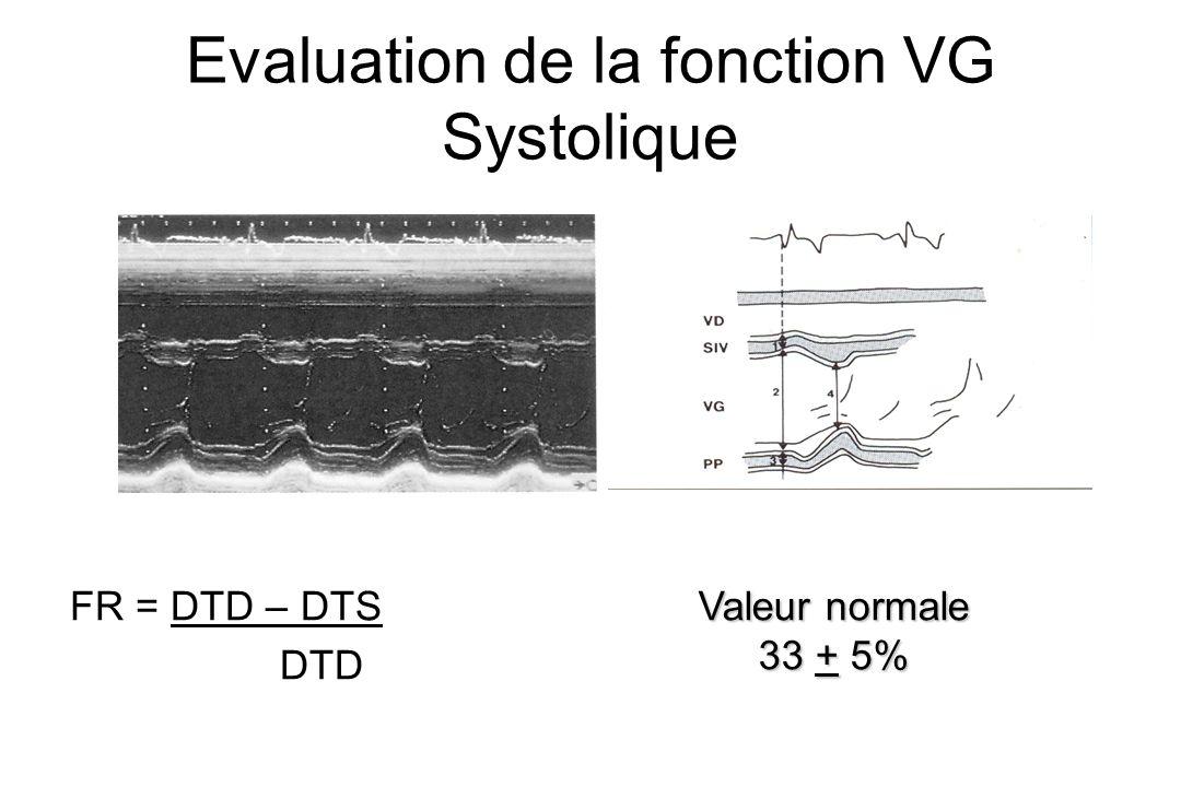 Evaluation de la fonction VG Systolique