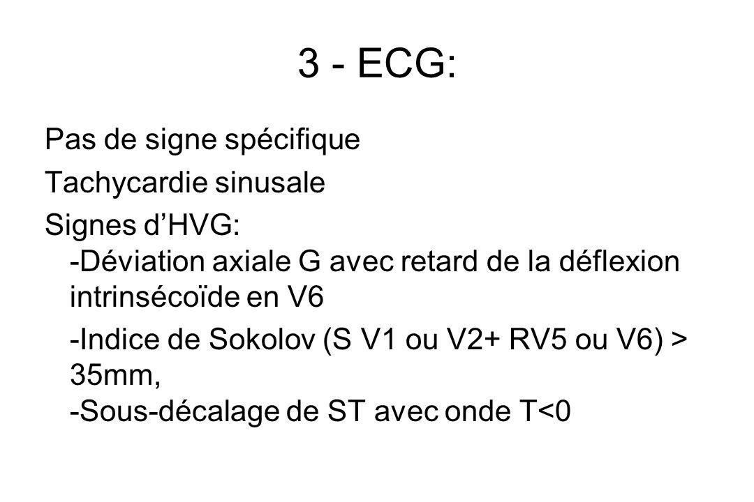 3 - ECG: Pas de signe spécifique Tachycardie sinusale