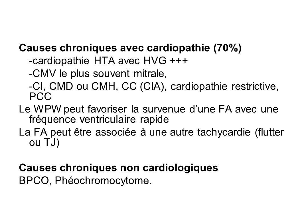 Causes chroniques avec cardiopathie (70%)