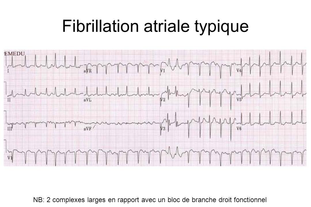 Fibrillation atriale typique