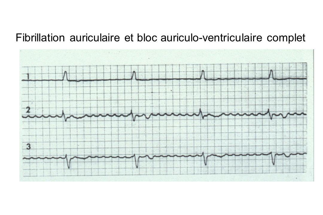 Fibrillation auriculaire et bloc auriculo-ventriculaire complet