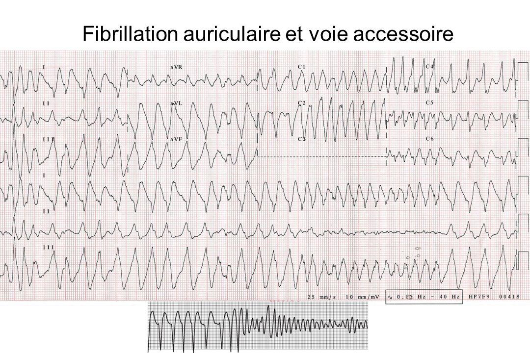 Fibrillation auriculaire et voie accessoire