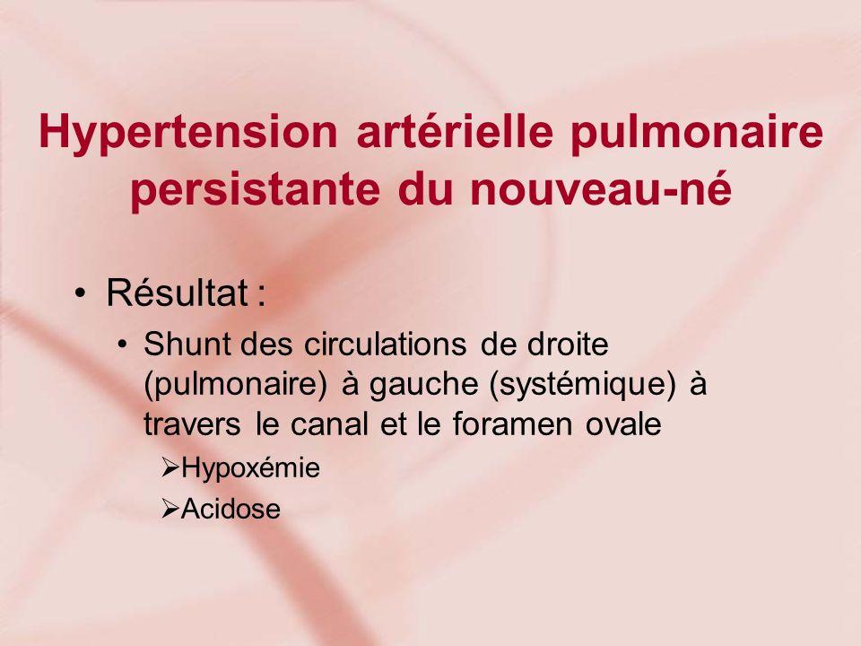 Hypertension artérielle pulmonaire persistante du nouveau-né