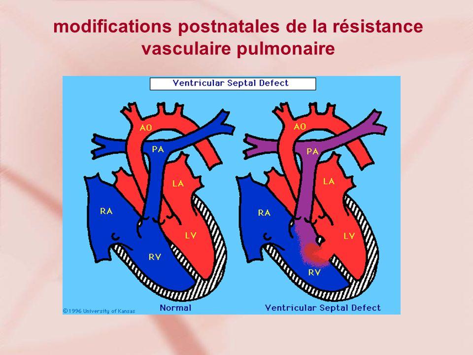 modifications postnatales de la résistance vasculaire pulmonaire