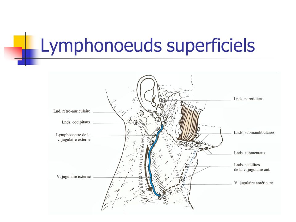 Lymphonoeuds superficiels